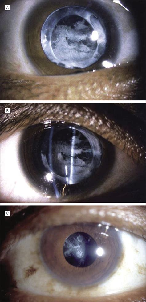 Posterior Capsular Opacification: A Problem Reduced but