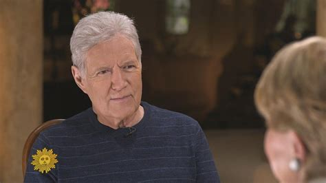 Alex Trebek Gets Candid About Having to Wear a Wig Due to