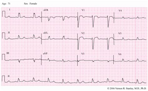Finding a STEMI in the presence of the Left Bundle Branch