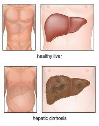 Cirrhosis of the Liver | Digestive Care Physicians